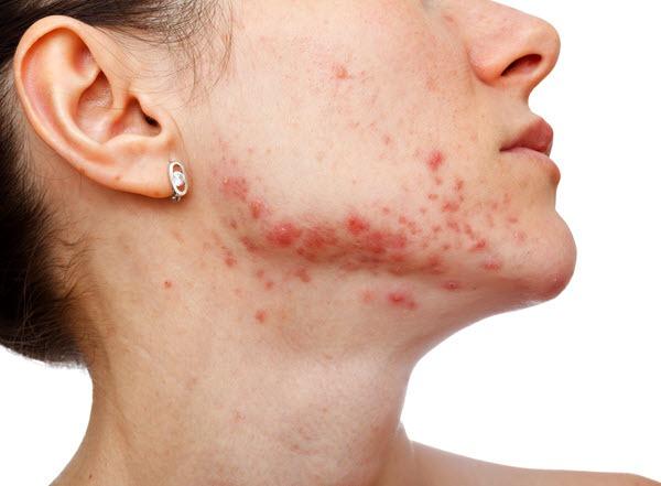 các loại mụn trên da mặt