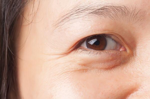 dấu hiệu da bị lão hóa sớm