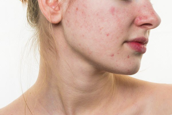 cách chăm sóc da mụn vào mùa hè