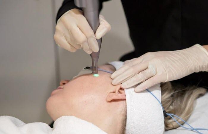 cách trị mụn thịt quanh mắt hiệu quả