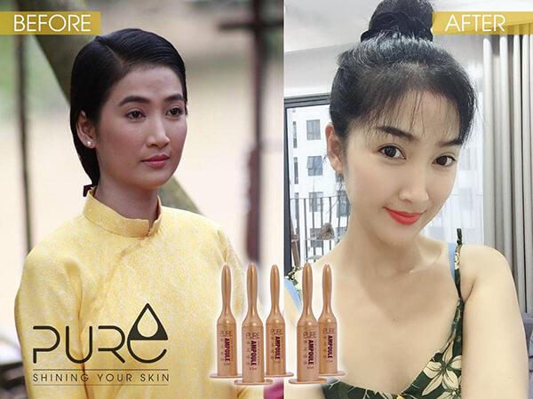 tinh chất keo ong ampoule pure quỳnh lam myphamhera.com