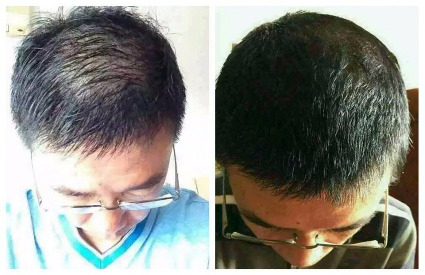 kết quả review dầu gội ngăn ngừa rụng tóc amla laco