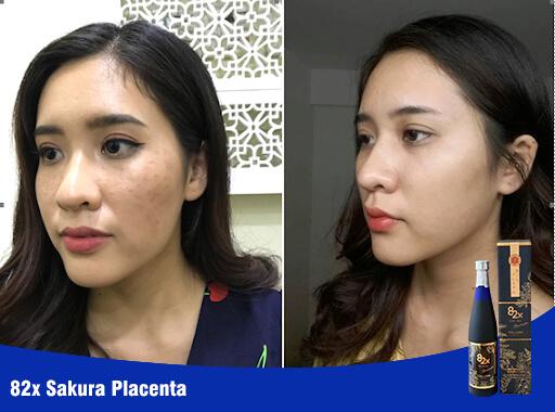 hiệu quả nước uống collagen sakura placenta mỹ phẩm hera