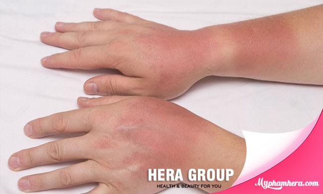 da tay bị cháy nắng