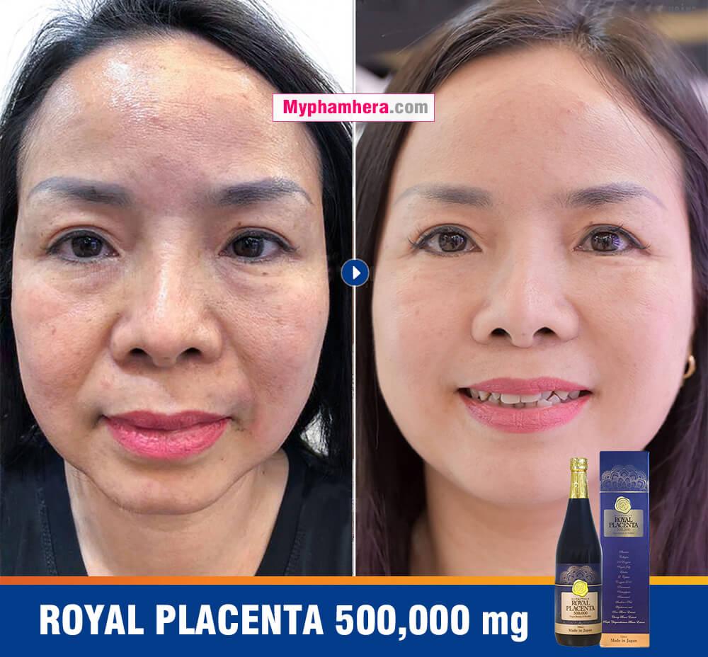 kết quả review nước uống royal placenta nhật bản