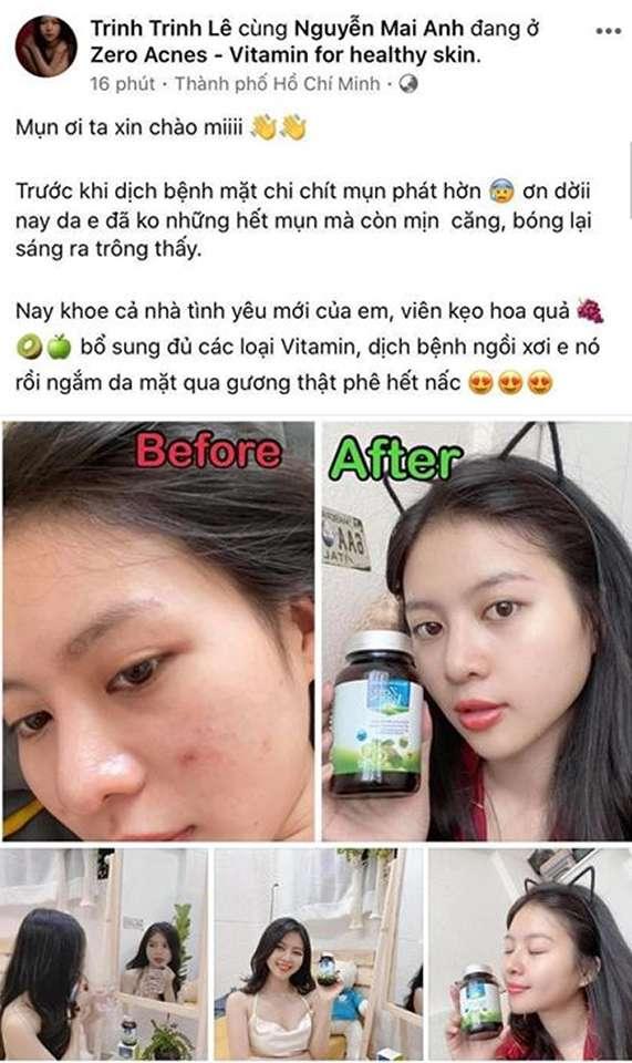 review viên uống zero acnes có tốt không myphamhera.com