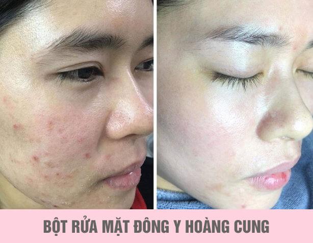 review bột rửa mặt đông y hoàng cung myphamhera.com