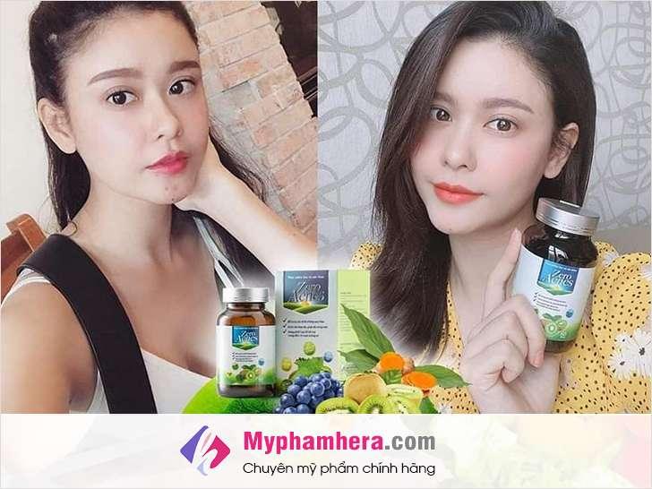 chế độ ăn để trị mụn nội tiết myphamhera.com