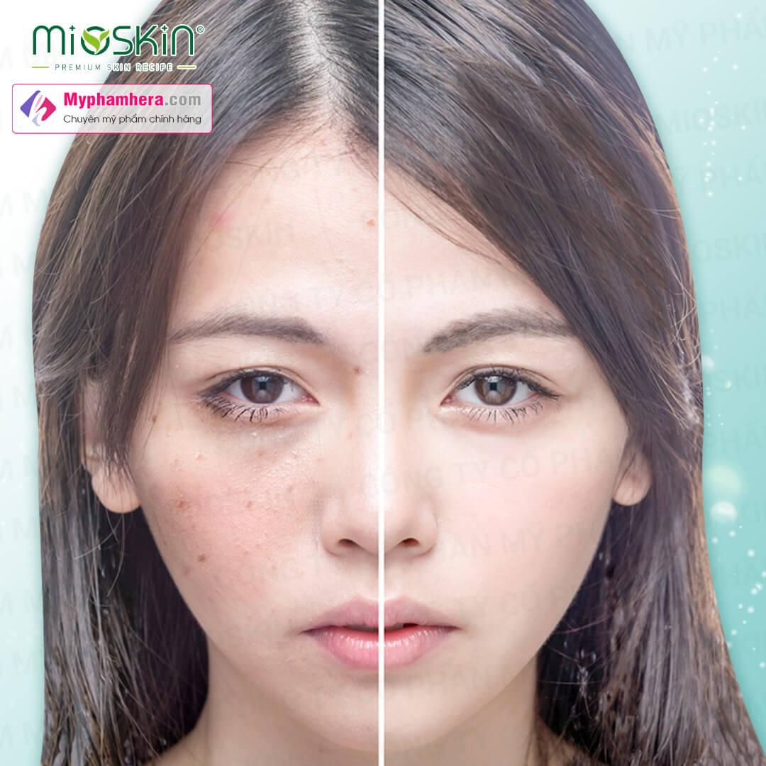 đối tượng sử dụng mioskin plus myphamhera.com