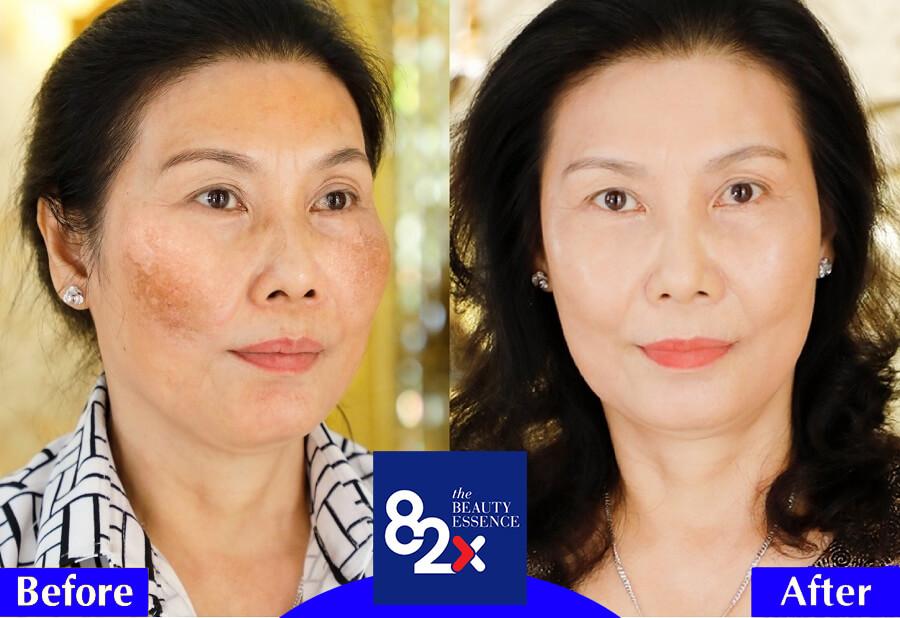 review nước uống collagen 82x myphamhera.com