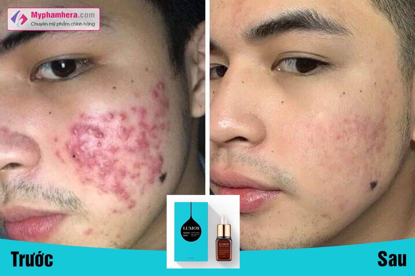 review serum lumos detox skin có tốt không myphamhera.com