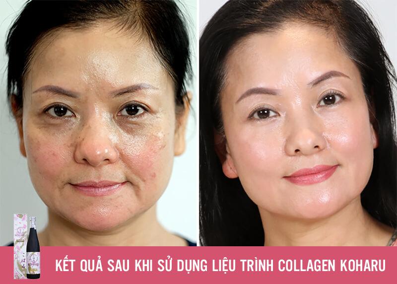 review collagen koharu có tốt không myphamhera.com