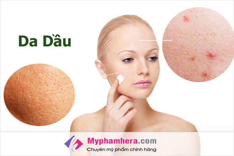 Chăm sóc da dầu đúng cách để hạn chế mụn
